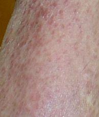 発疹 陰茎 陰茎の赤い発疹|亀頭包皮炎・いんきんたむしが原因かも。病院は何科?