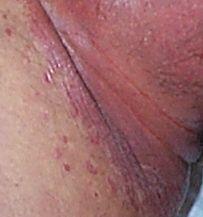 腫 環状 肉芽