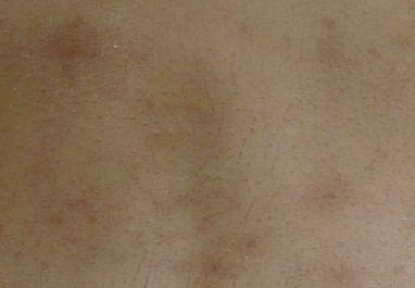ジベル 薔薇色 粃 糠 と は ジベルばら色粃糠疹 - Wikipedia