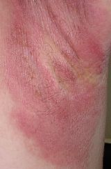 I have three skin conditions and need to have diagnosis