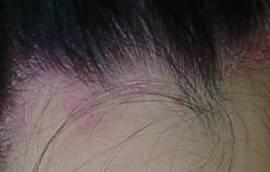 乾癬の初期(3ミリ位の鱗屑を付けた紅斑)