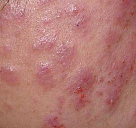かゆみ ストレス 写真 皮膚
